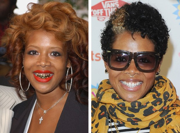 Kelis with teeth grillz